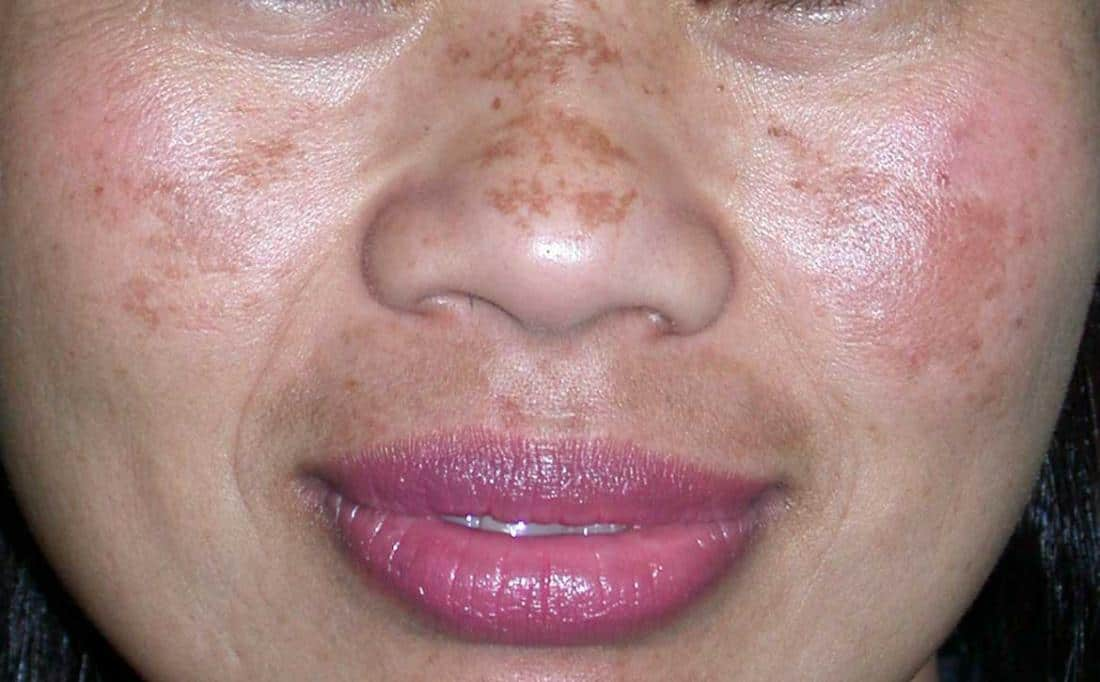 melasma on woman s nose and cheeks